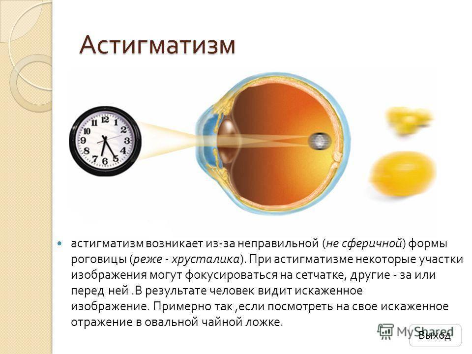 Смешанный астигматизм у детей: причины, симптомы, лечение и профилактика — глаза эксперт