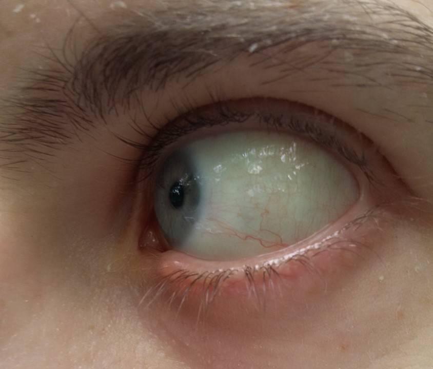 Почему глаза не белые. белый белок глаз - здоровая спина