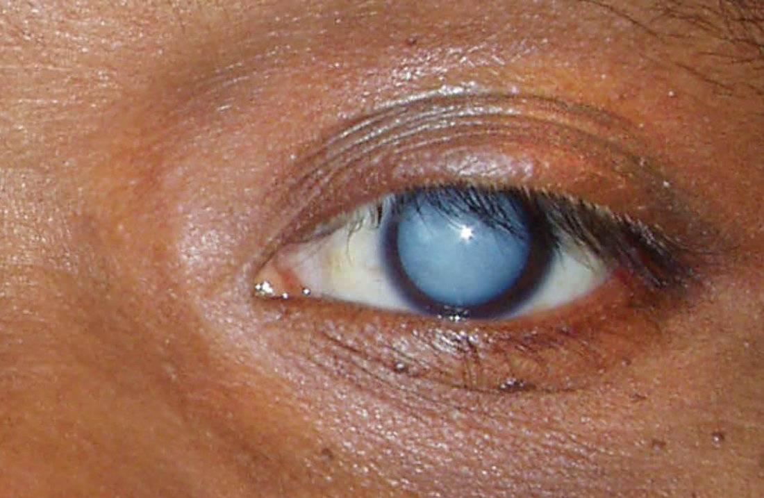 Бельмо на глазу у человека: причины, признаки, особенности лечения и профилактика