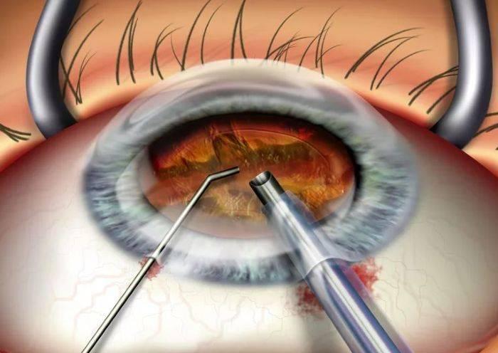 Операция при катаракте глаза: суть, цены, реабилитация