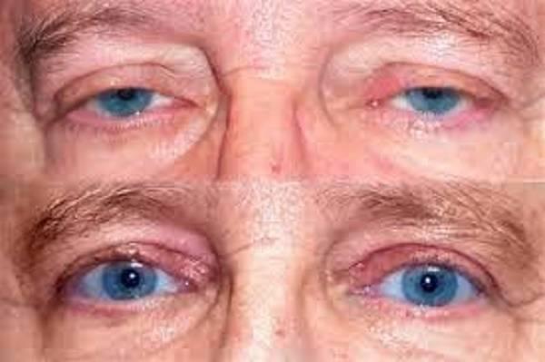 Птоз верхнего века: причины возникновения у взрослых, лечение без операции в домашних условиях, опущение глаза, как убрать врожденный