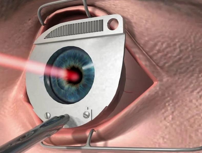 """Как лечить глаукому народными средствами - """"здоровое око"""""""