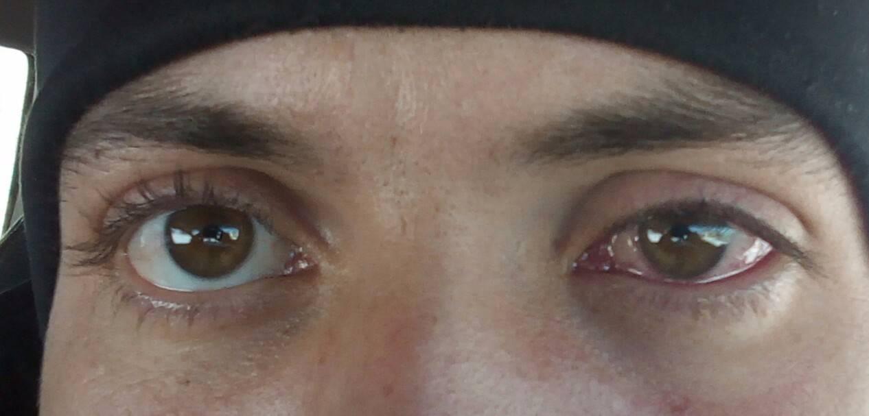 В глаз попала стружка от болгарки что делать в домашних условиях: окалина, искра, крошка, как вытащить осколок