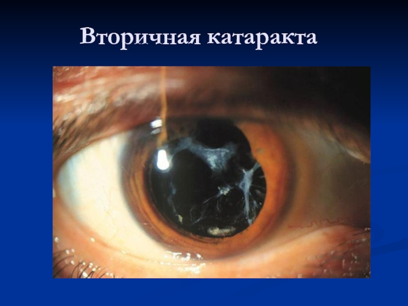 Лечение вторичной катаракты после замены хрусталика