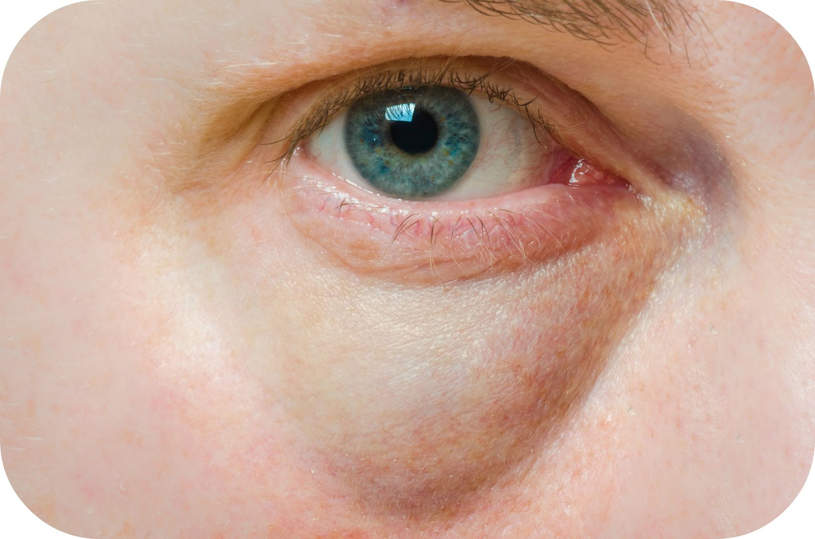 Глаза щиплет и слезятся: причины и лечение