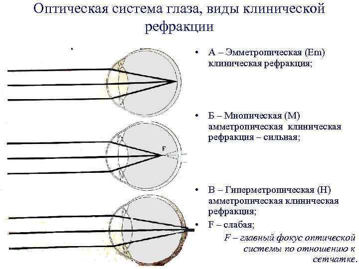 Что такое диапазон рефракций. клинические аномалии рефракции глаза: что это такое, основные виды патологии, рефракционное лечение и коррекция зрения