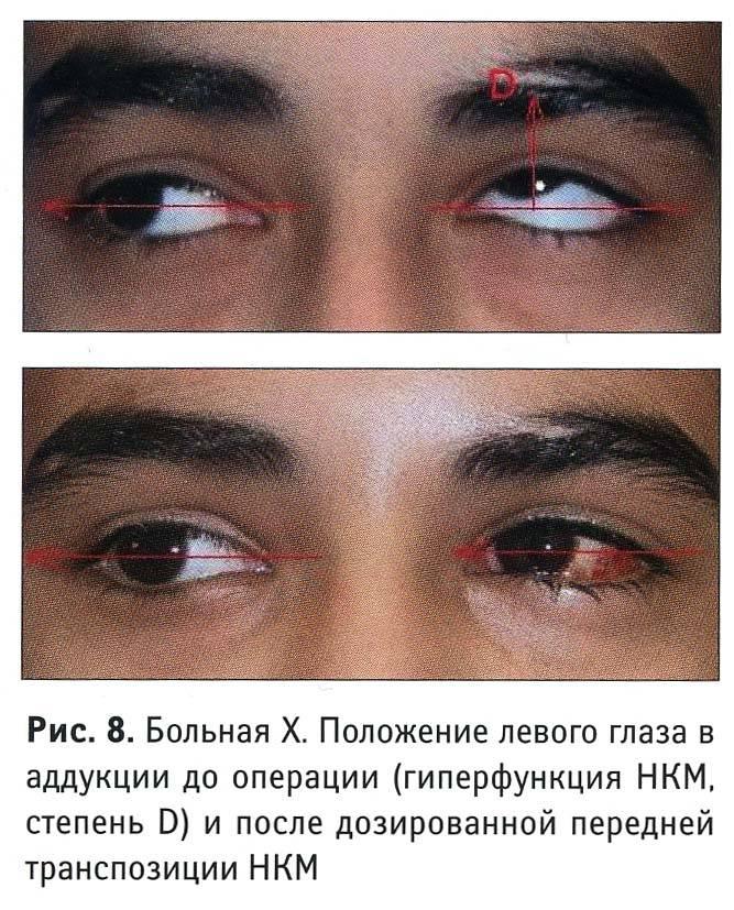Операция по увеличению глаз, изменению разреза, кантопластика