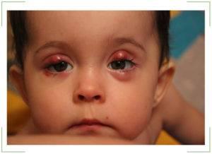 Халязион у ребенка - лечение верхнего и нижнего века, комаровский