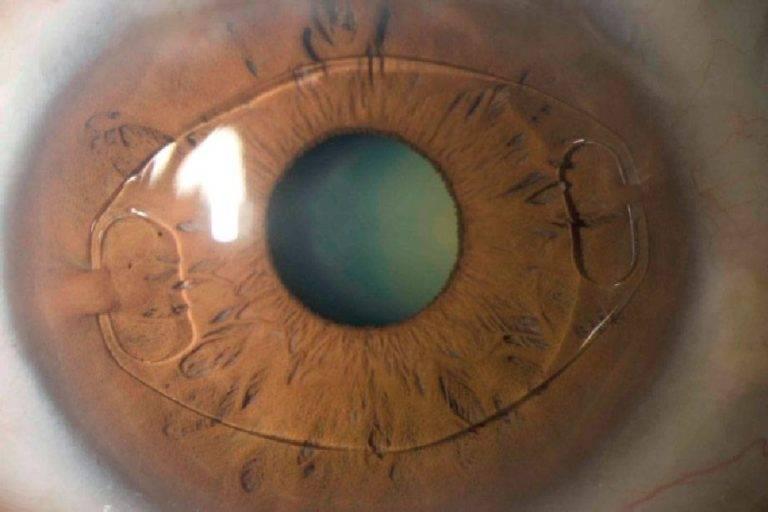 Можно ли носить линзы после лазерной коррекции зрения: мнение специалистов