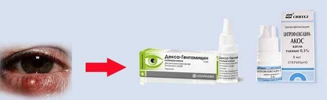 Ацикловир от ячменя на глазу можно ли использовать эту мазь?
