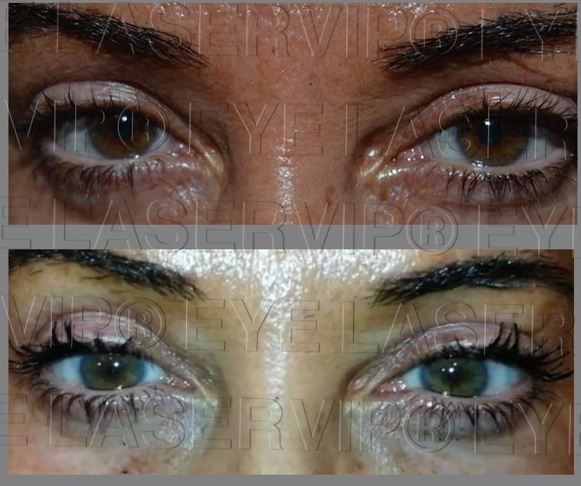 Операция по изменению цвета глаз лазером и хирургическим путем: можно ли изменить оттенок, как делают и сколько стоит