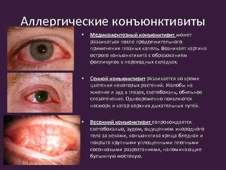 Конъюнктивит и его симптомы, виды и методы лечения