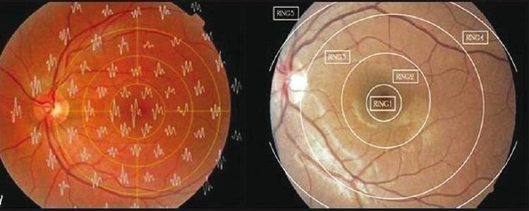 ✅ данные эфи глаз. эфи глаза: показания к назначению и четыре формы исследования. видео об исследовании глаз методом эфи - mymets.ru