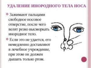 Контактная оптика таит в себе угрозу зрению? может ли линза закатиться за глазное яблоко. контактная линза закатилась за веко, что нужно делать? что делать потеряла линзу