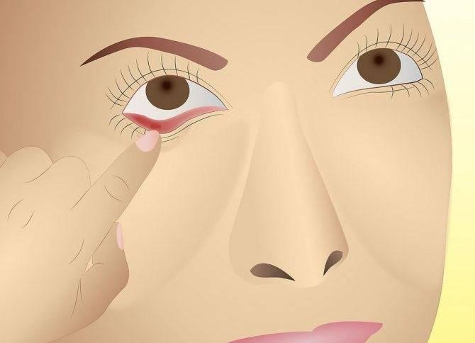 Болит глаз при надавливании на глазное яблоко и движении: причины, лечение, диагностика болей при нажатии