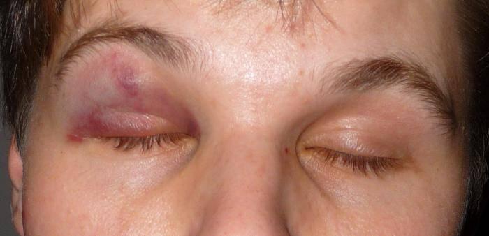 Синяк под глазом или параорбитальная гематома. как быстро убрать?