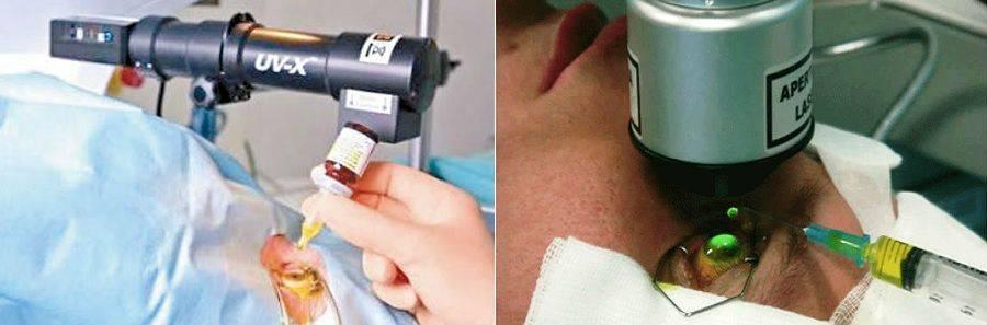 Кросслинкинг роговицы (операция при кератоконусе): показания, суть и проведение, результат и реабилитация