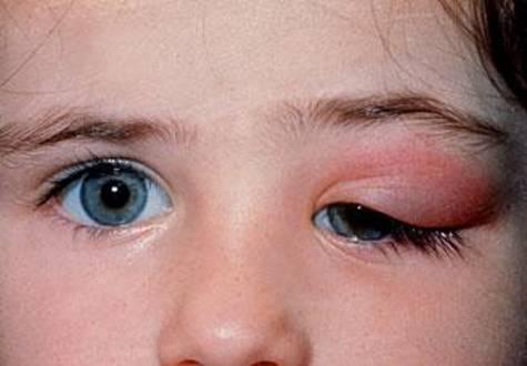 У ребенка опухло верхнее веко глаза: причины, что делать при отеке и покраснении, диагностика и профилактика отечности