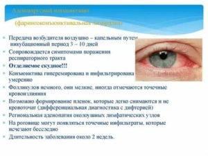 Вирусный конъюнктивит у взрослых: причины, симптомы, лечение, препараты для терапии острой энтеровирусной инфекции глаз