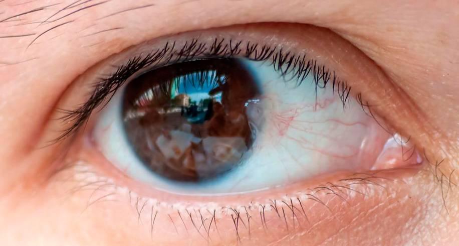 Плёнка на глазах у человека: что делать, причины oculistic.ru плёнка на глазах у человека: что делать, причины