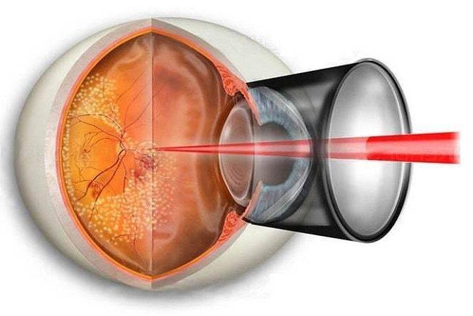 Операция при отслоении сетчатки глаза: методы, показания, реабилитация