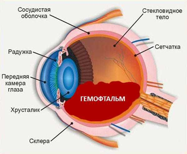 Гемофтальм: что это такое и как лечится?