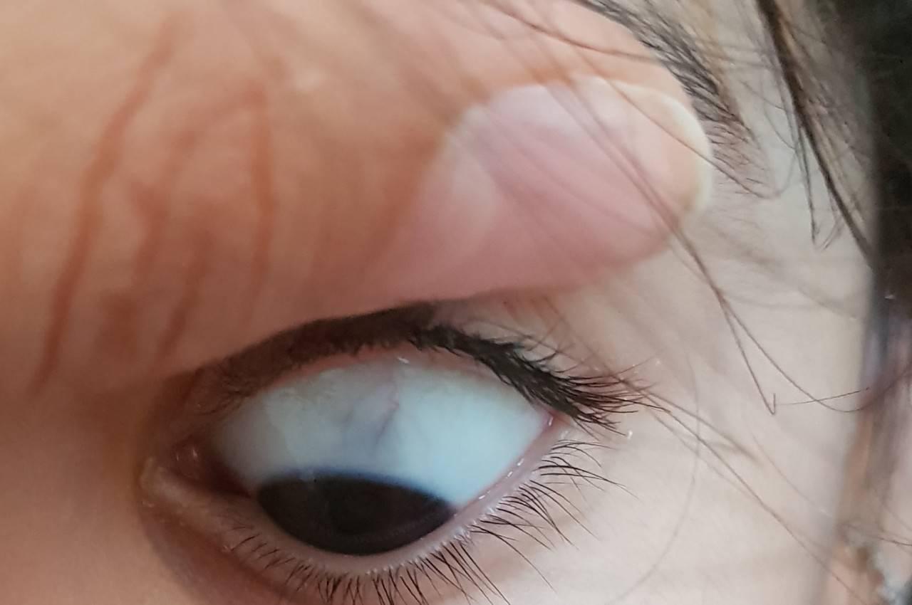 Серые белки по краям глаз - вопрос офтальмологу - 03 онлайн