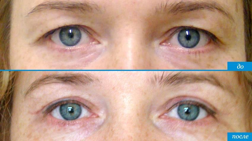 Кантопластика глаз: фото до и после, отзывы, стоимость операции. виды кантопластики глаз
