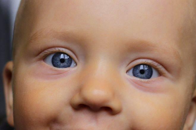 Синяки под глазами у грудничка: причины и лечение