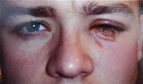 Что делать, если кислота попала в глаз, в особенности салициловая, борная, из аккумулятора, серная, паяльная и другие