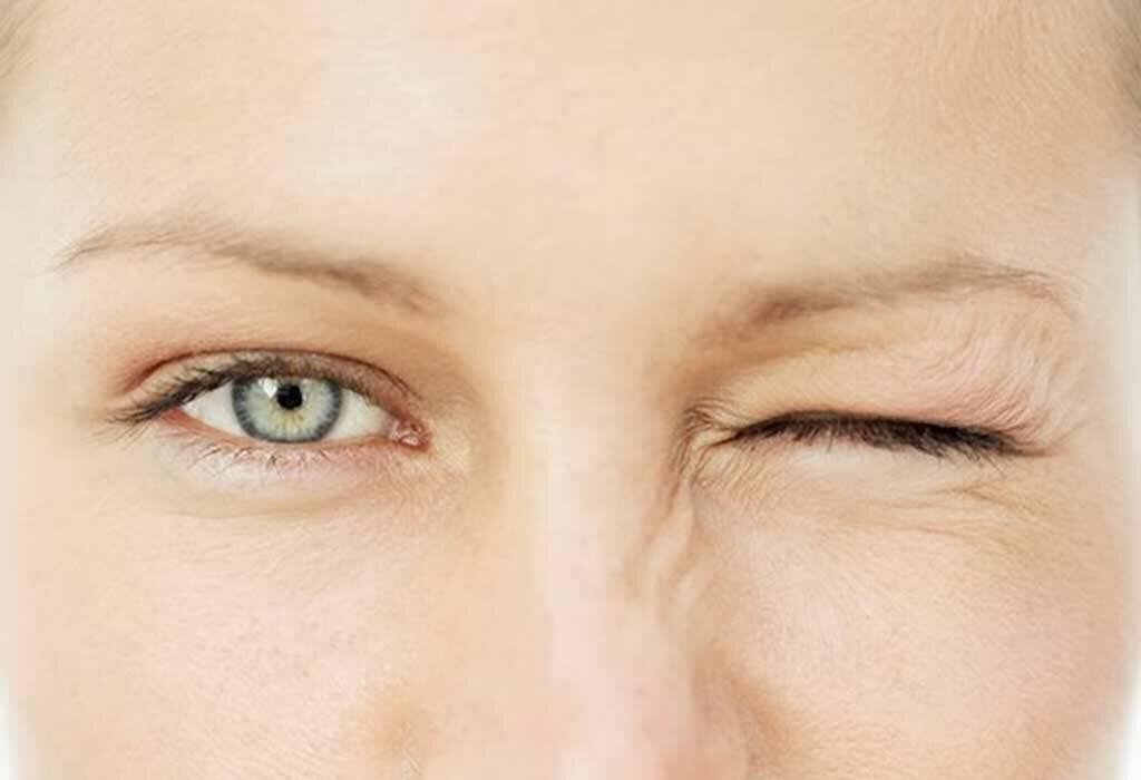 Что такое блефароспазм?