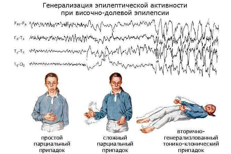 Ксантопсия - причины,симптомы,лечение