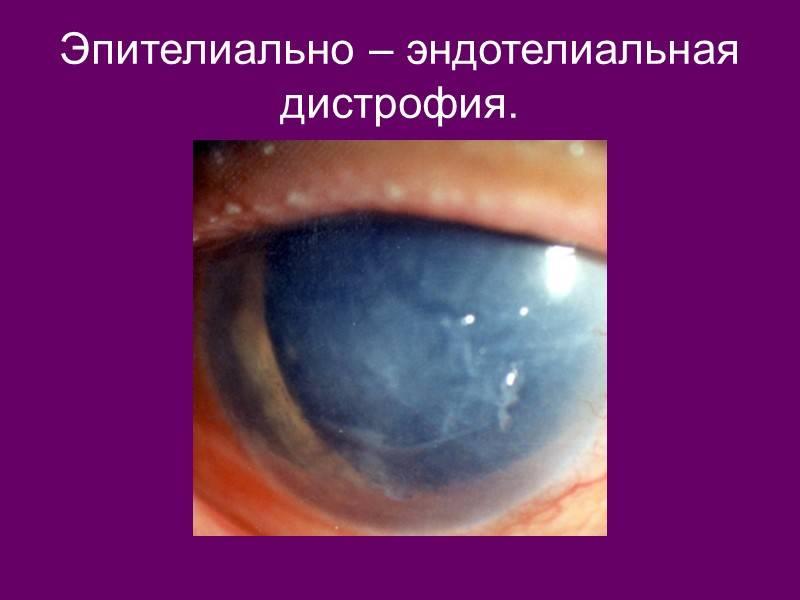 Дистрофия роговицы глаза: лечение, как лечить эпителиально-эндотелиальную форму