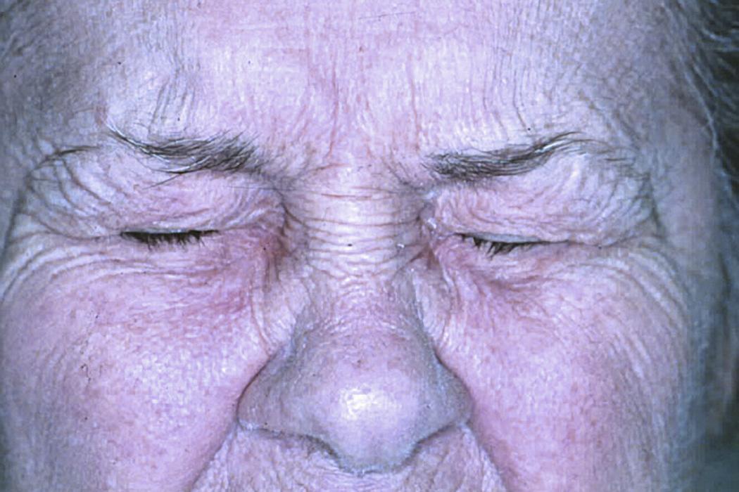 Блефароспазм: лечение и симптомы подергивания верхнего и нижнего века, народные средства