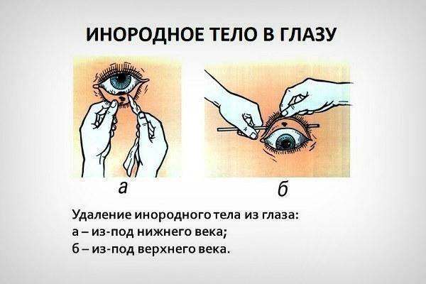 Ощущение инородного тела в глазу - вопрос офтальмологу - 03 онлайн