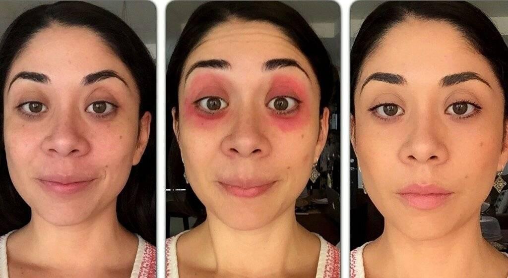 Как замаскировать синяки под глазами: правильное камуфлирование кожи, средства и правила нанесения