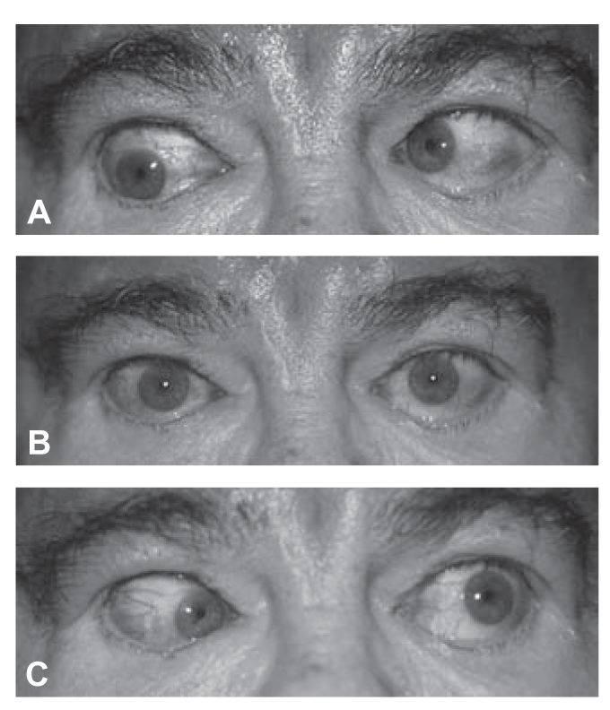 Причины возникновения диплопии и методы лечения
