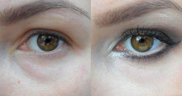 Бадяга от синяков и тёмных кругов под глазами: порошок, мазь, крем, гель, способы применения, противопоказания и отзывы