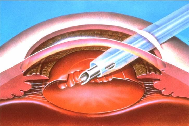 Факоэмульсификация катаракты с имплантацией иол (ультразвуковая, лазерная): показания, этапы, осложнения после операции, типы искусственных линз, послеоперационный период