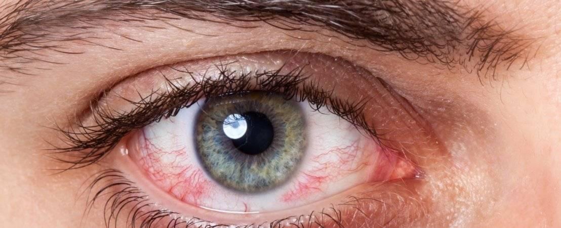 Что делать, если чешутся глаза в уголках: основные причины зуда и лечение