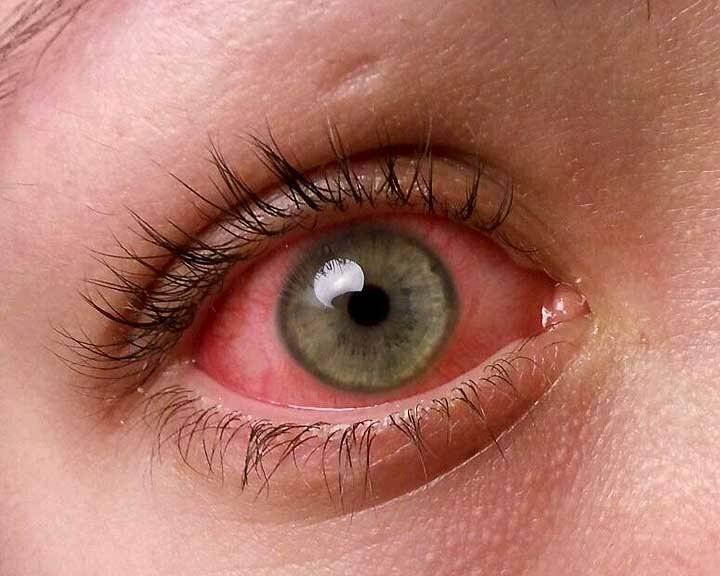 Красные глаза при простуде у взрослого