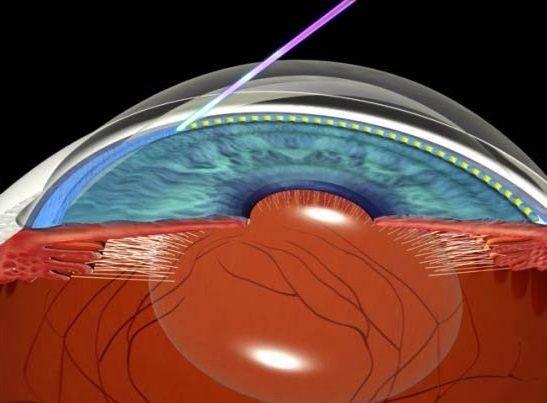 Лазерная трабекулопластика при открытой глаукоме