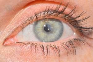 Кератопатия - что это, фото, виды, лечение, причины и симптомы