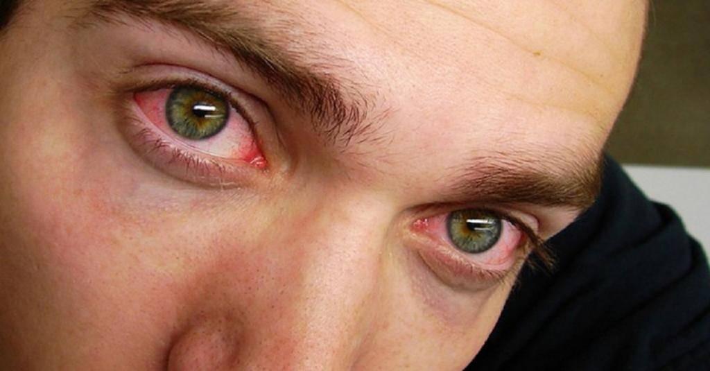 Почему краснеют глаза с утра после сна