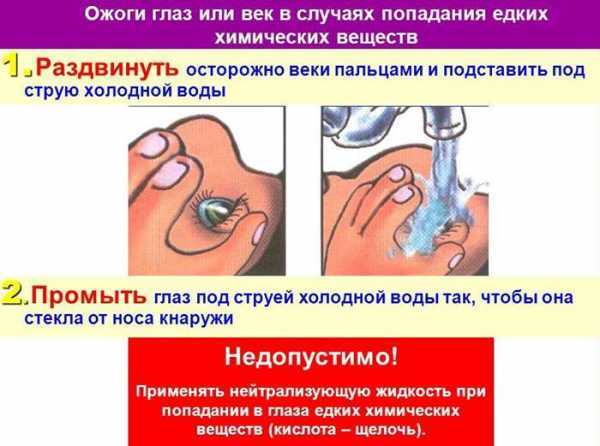 Химический ожог глаза: симптомы и лечение oculistic.ru химический ожог глаза: симптомы и лечение