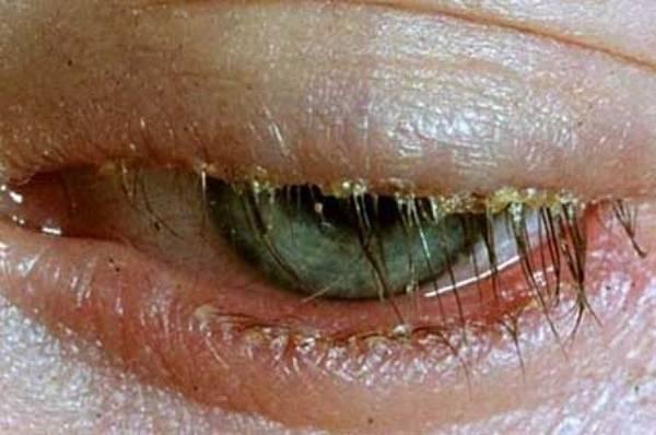 Мейбомиевый блефарит: симптомы и лечение глаз