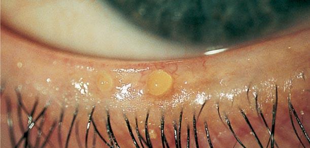 Хронический блефарит, чешуйчатый, аллергический, мейбомиевый: симптомы и лечение
