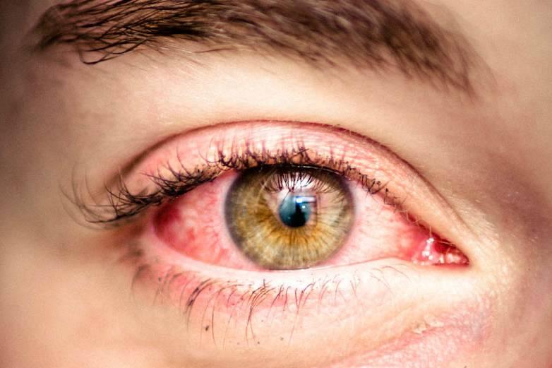 Аллергия на глазах и веках глаз: что делать, когда они опухают и чешутся