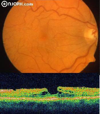 Эпиретинальный фиброз / патологии сетчатки / глазные болезни / главная страница