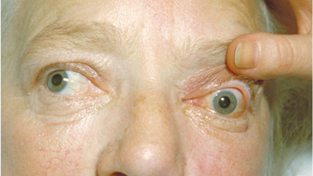 Экзофтальм: причины, виды, диагностика и лечение